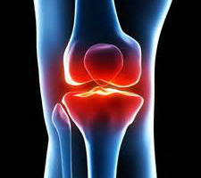 Gelatin can reduce joint issues